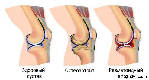 Лучшее лечение артроза коленного сустава