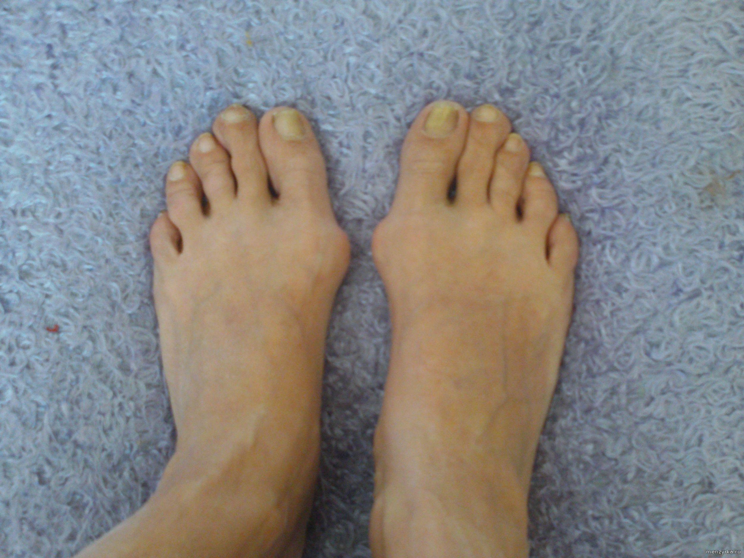 Косточки на ногах: как избавиться? Новый метод 76