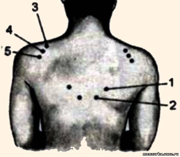 Синдром Таламический